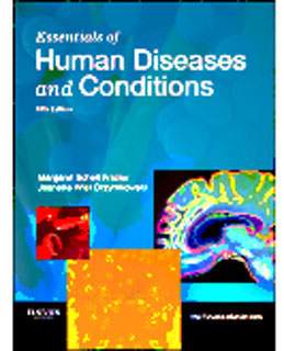 Buy: Test Bankfor Essentials of Human Diseases and Conditions